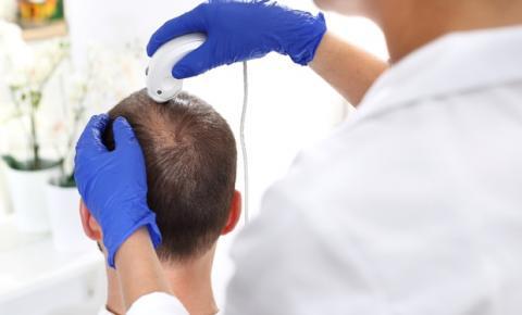 Queda de cabelo afeta a autoestima: tratamentos clínicos na tricologia são opção
